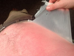 Might be sunburn, might be lizard person.