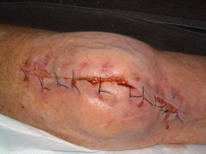Every medical article needs a close up of a disgusting wound.